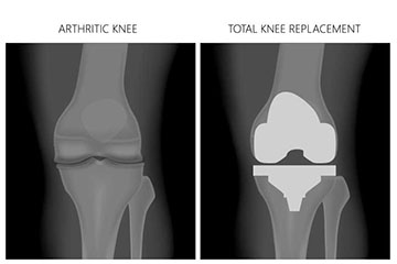 Post-Operative Knee Surgery
